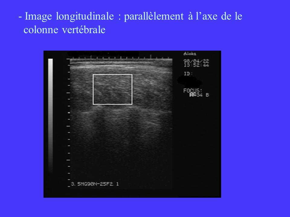 - Image longitudinale : parallèlement à laxe de le colonne vertébrale