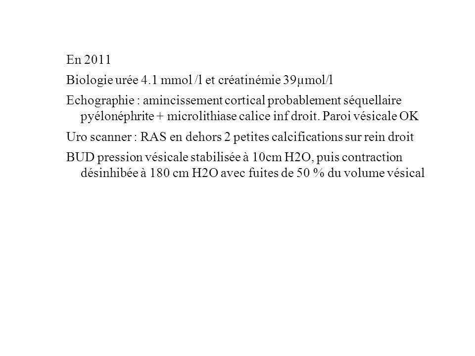 En 2011 Biologie urée 4.1 mmol /l et créatinémie 39µmol/l Echographie : amincissement cortical probablement séquellaire pyélonéphrite + microlithiase