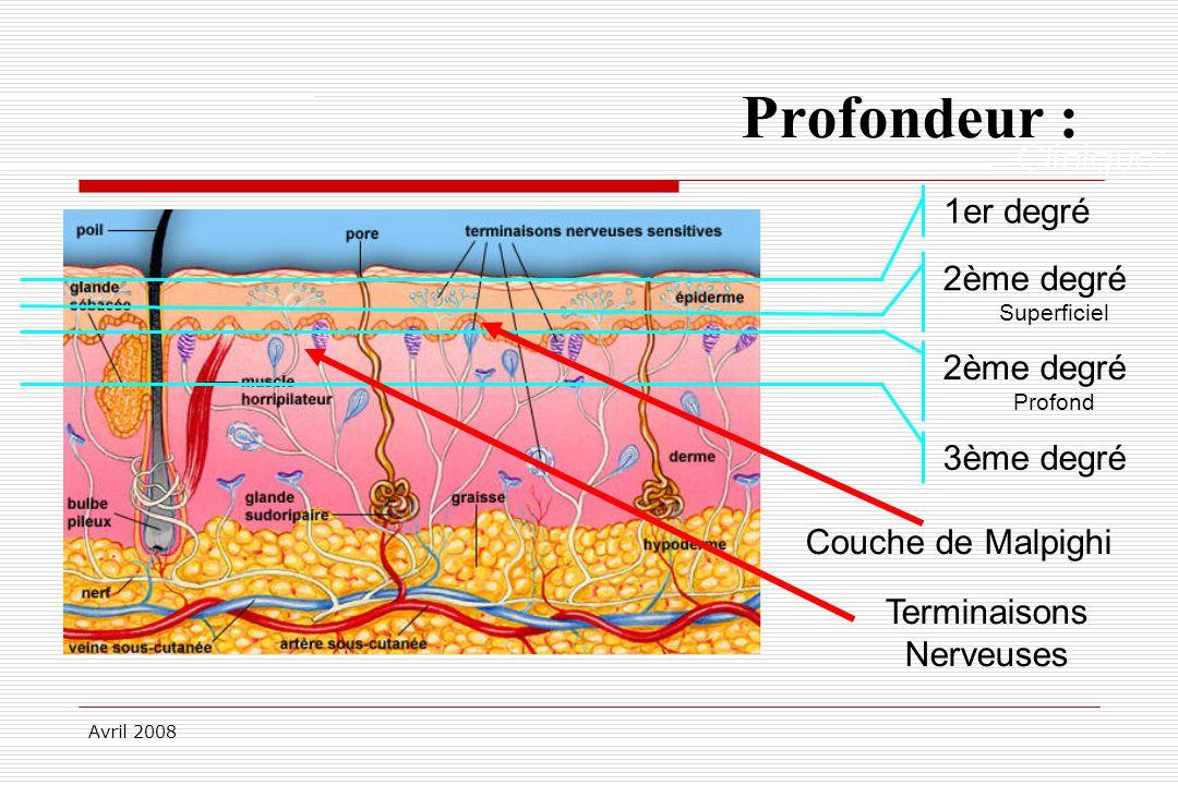Avril 2008 Profondeur : Clinique: 1er degré2ème degré Superficiel 2ème degré Profond 3ème degré Couche de Malpighi Terminaisons Nerveuses