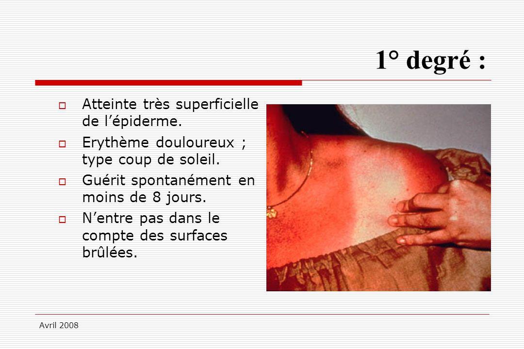 Avril 2008 1° degré : Atteinte très superficielle de lépiderme. Erythème douloureux ; type coup de soleil. Guérit spontanément en moins de 8 jours. Ne