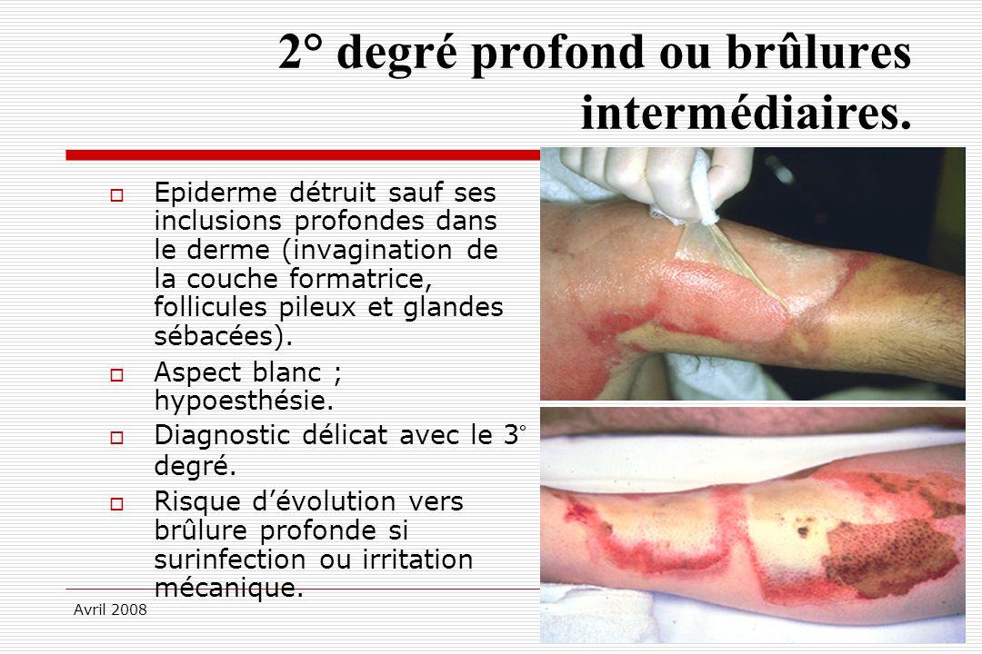 Avril 2008 2° degré profond ou brûlures intermédiaires. Epiderme détruit sauf ses inclusions profondes dans le derme (invagination de la couche format