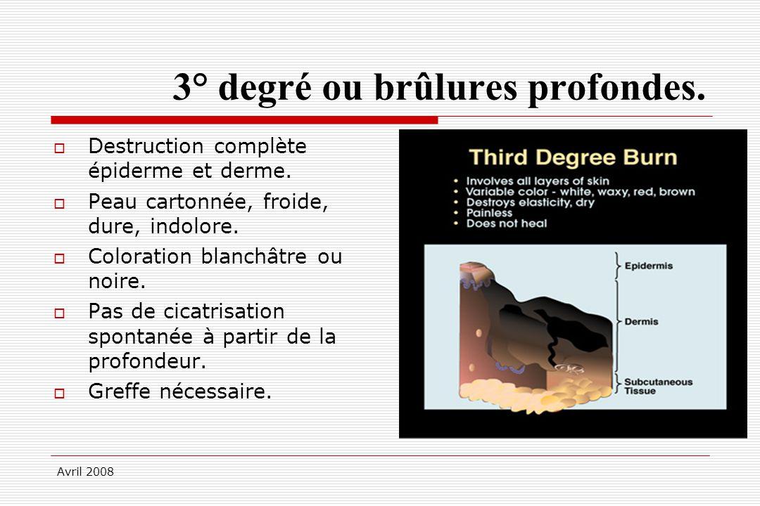 Avril 2008 3° degré ou brûlures profondes. Destruction complète épiderme et derme. Peau cartonnée, froide, dure, indolore. Coloration blanchâtre ou no