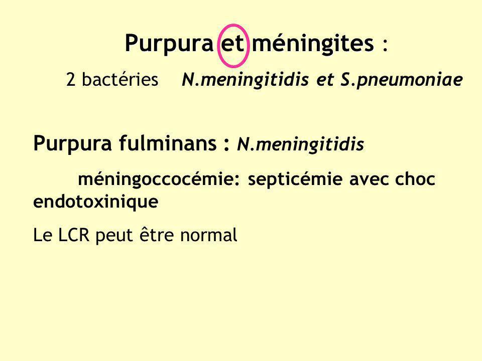 Purpuraméningites Purpura et méningites : 2 bactéries N.meningitidis et S.pneumoniae Purpura fulminans : N.meningitidis méningoccocémie: septicémie av