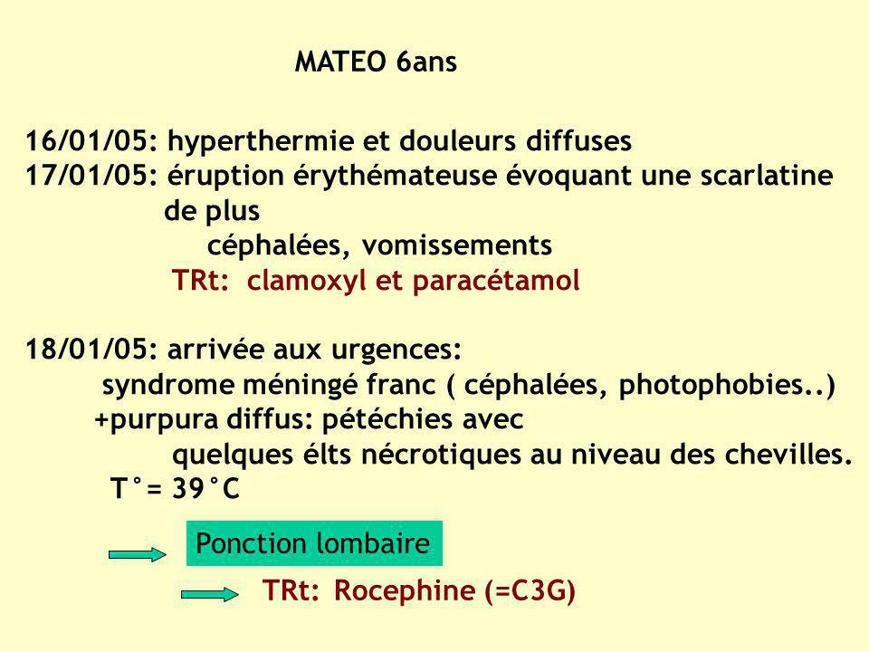 MATEO 6ans 16/01/05: hyperthermie et douleurs diffuses 17/01/05: éruption érythémateuse évoquant une scarlatine de plus céphalées, vomissements TRt: c