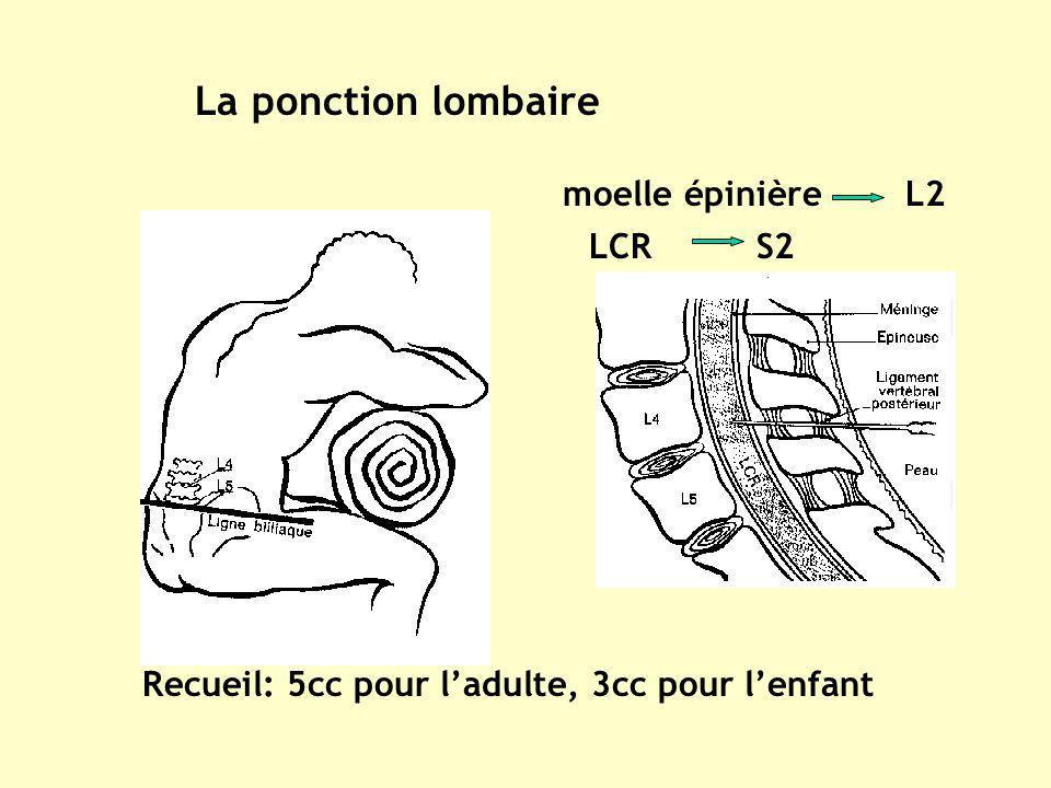 La ponction lombaire Recueil: 5cc pour ladulte, 3cc pour lenfant moelle épinière L2 LCR S2