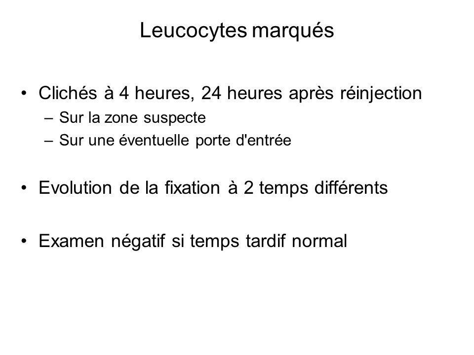 Leucocytes marqués Clichés à 4 heures, 24 heures après réinjection –Sur la zone suspecte –Sur une éventuelle porte d entrée Evolution de la fixation à 2 temps différents Examen négatif si temps tardif normal