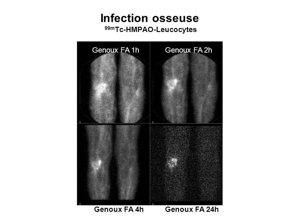 Infection osseuse 99m Tc-HMPAO-Leucocytes Genoux FA 1hGenoux FA 2h Genoux FA 4hGenoux FA 24h