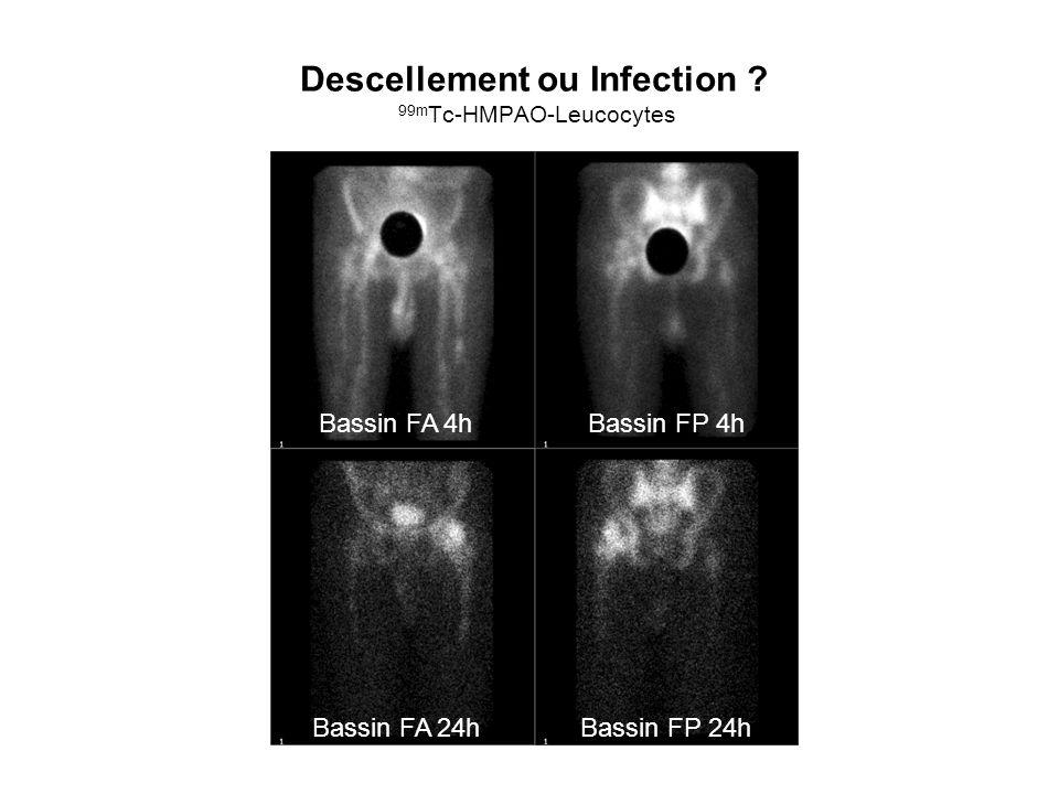 Descellement ou Infection ? 99m Tc-HMPAO-Leucocytes Bassin FA 4hBassin FP 4h Bassin FA 24hBassin FP 24h