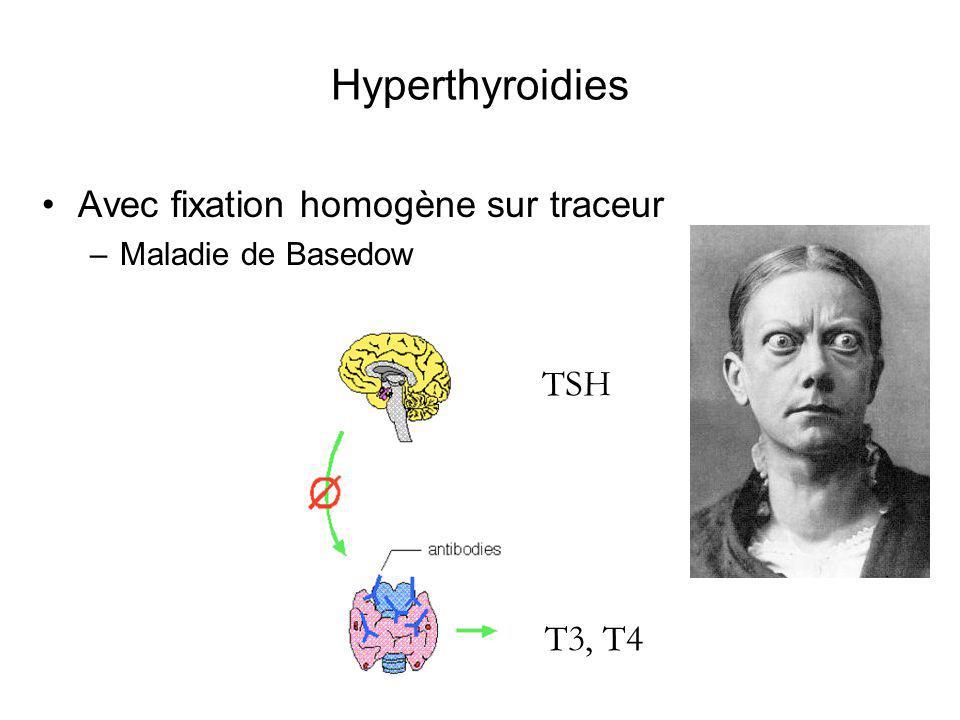 Hyperthyroidies Avec fixation homogène sur traceur –Maladie de Basedow T3, T4 TSH