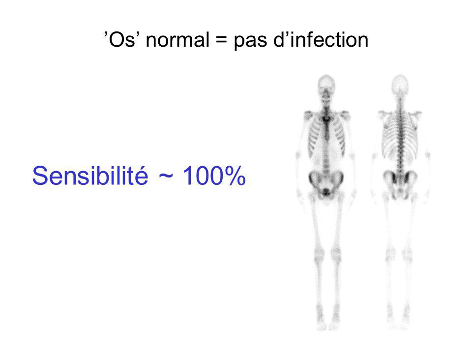 Infection osseuse et fistule cutanée 99m Tc-HMPAO-Leucocytes Bassin FA 4hBassin FP 4h Bassin FA 24hGenoux FA 24h