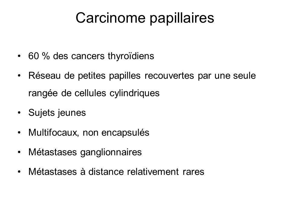 Carcinome papillaires 60 % des cancers thyroïdiens Réseau de petites papilles recouvertes par une seule rangée de cellules cylindriques Sujets jeunes Multifocaux, non encapsulés Métastases ganglionnaires Métastases à distance relativement rares