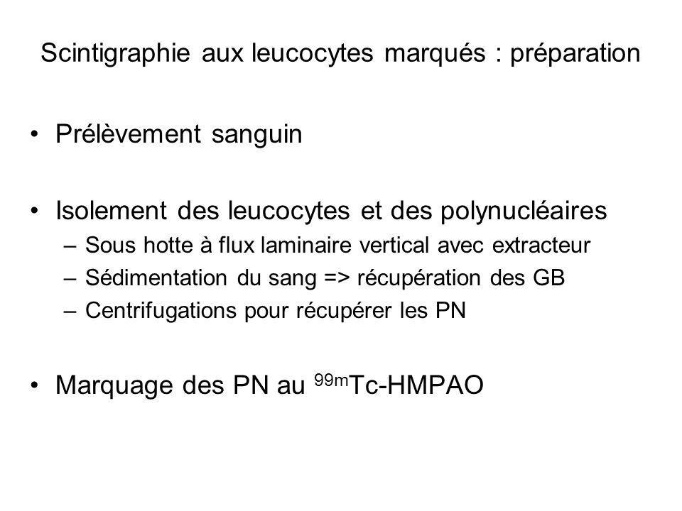 Scintigraphie aux leucocytes marqués : préparation Réinjection des PN autologues marqués au 99m Tc- HMPAO Le plus rapidement possible Images sous caméra