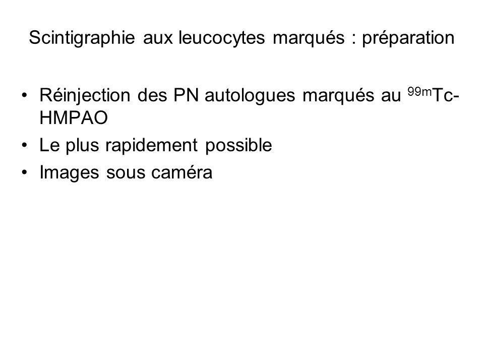 Problème : évaluer l infection Imagerie morphologique?Bactériologie.