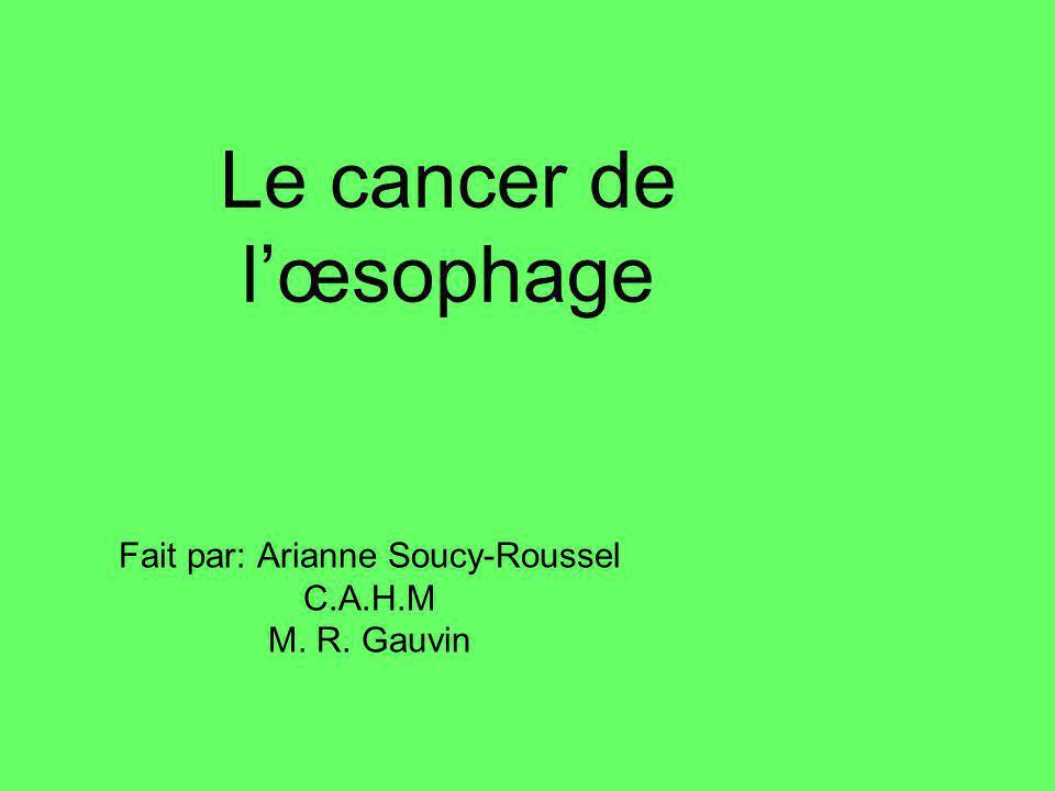 Le cancer de lœsophage Fait par: Arianne Soucy-Roussel C.A.H.M M. R. Gauvin