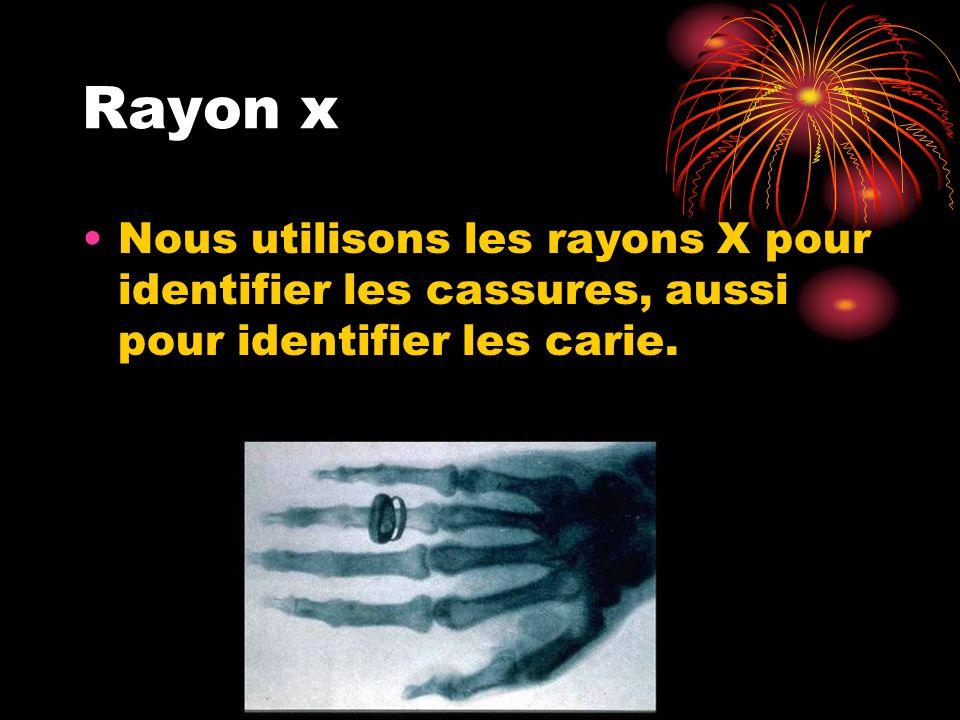 Rayon x Nous utilisons les rayons X pour identifier les cassures, aussi pour identifier les carie.