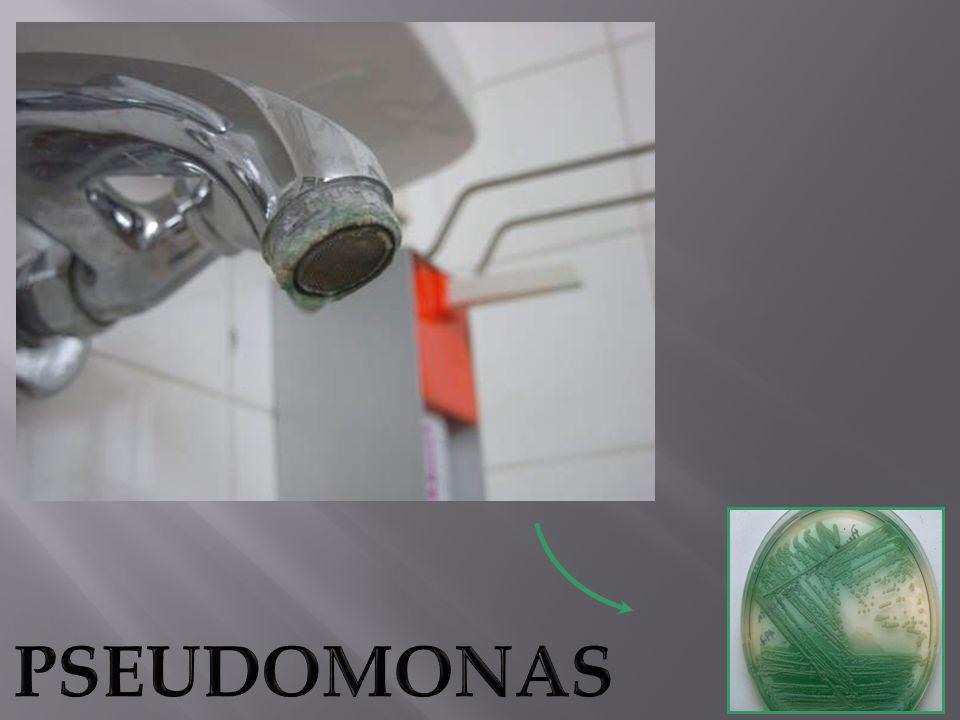 1)Resister a toute forme de desinfection du system de tuyauterie y compris l hyperchlorination et autres biocides.