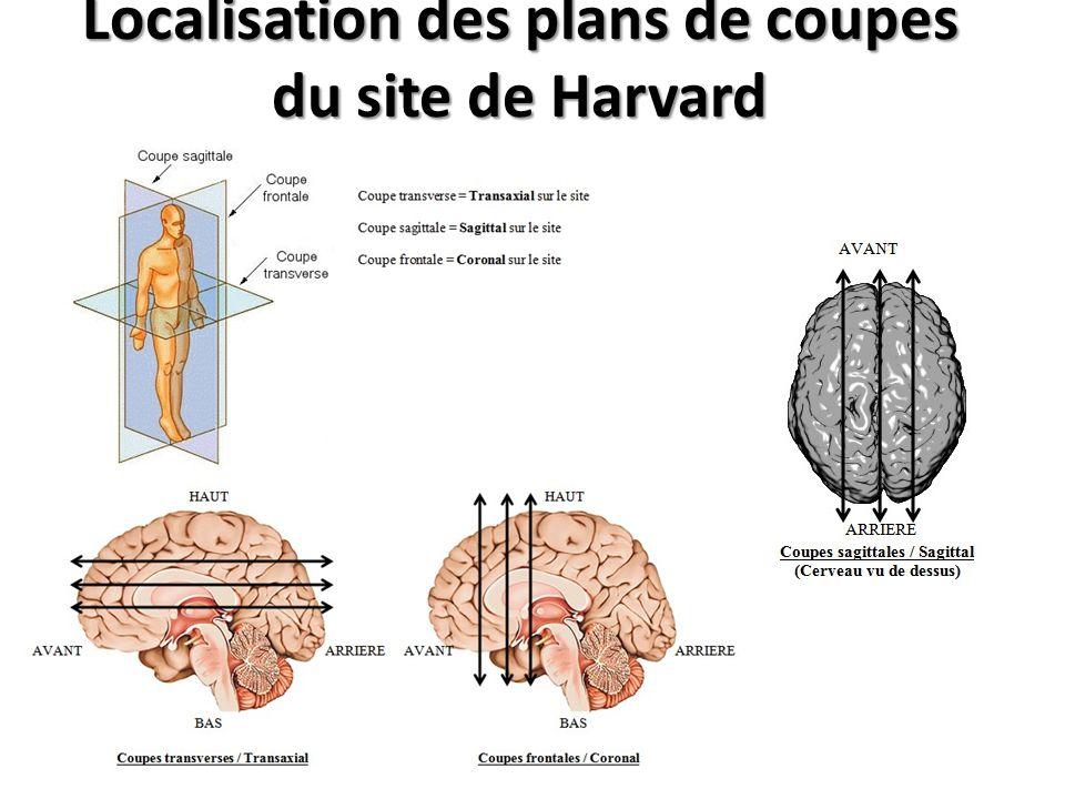 Localisation des plans de coupes du site de Harvard