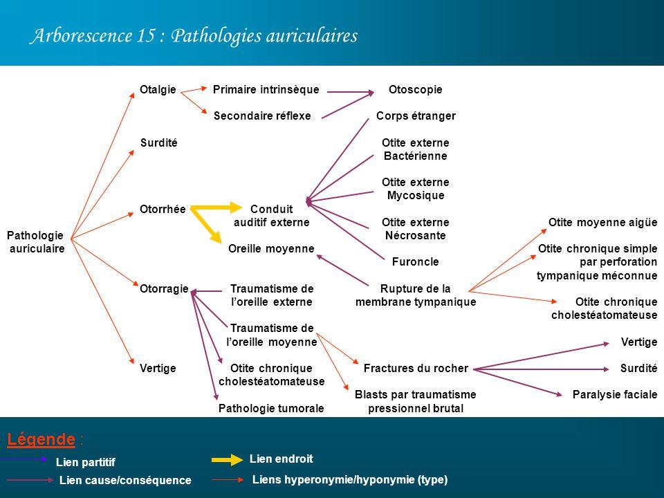 Arborescence 15 : Pathologies auriculaires Légende : Pathologie auriculaire Lien partitif Otalgie Surdité Otorrhée Otorragie Vertige Otoscopie Corps é
