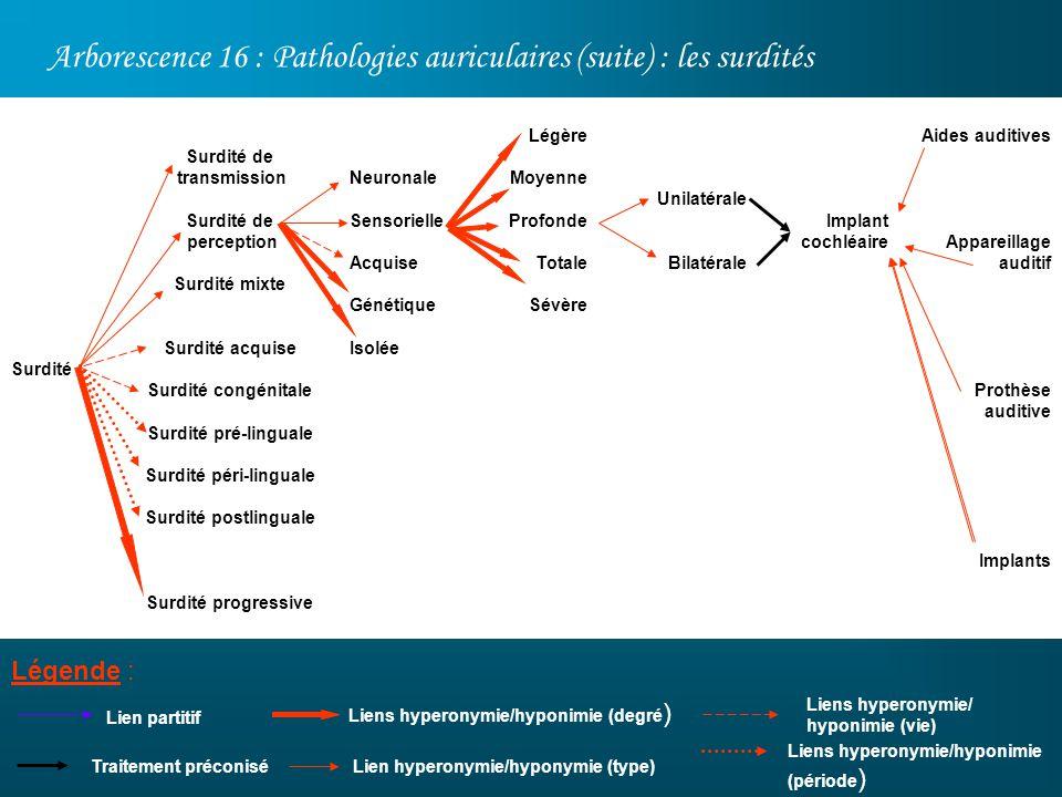 Arborescence 16 : Pathologies auriculaires (suite) : les surdités Légende : Surdité Lien partitif Surdité de transmission Surdité de perception Surdit
