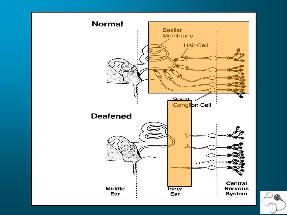 Principal Manufacturers on the international market: Advanced Bionics Corporation (Clarion device) Cochlear Corporation (Nucleus device)Nucleus device Med-EL Corporation (Combi 40 + device; Tempo + BTE; CIS PRO + speechprocessors)
