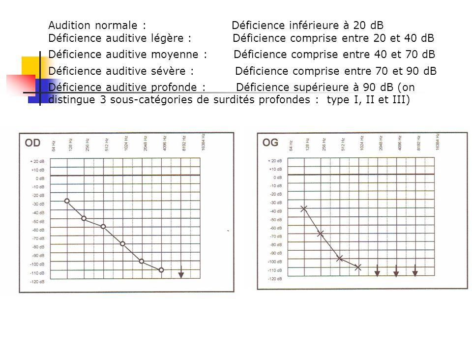 Audition Normale. Une différence de 5 db n'est pas significative Surdité de transmission Elle traduit une atteinte du système tympano-ossiculaire. Au
