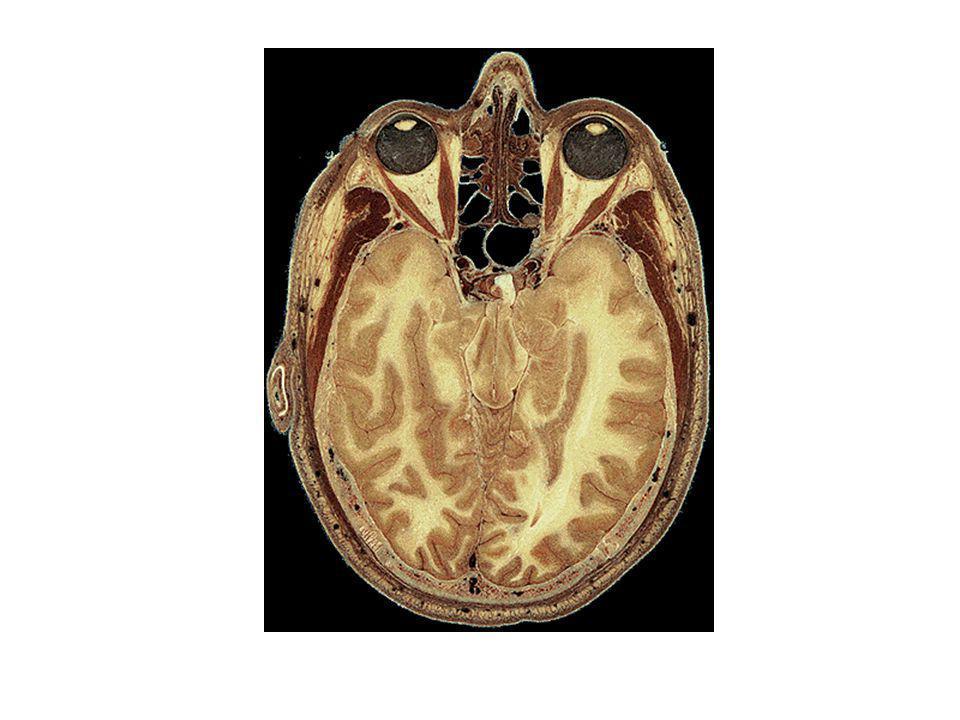 Hypothèse de la spécialisation hémisphérique repose sur la notion de « Split Fovéa » La question fondamentale qui se pose est la suivante : Est-ce que linformation visuelle perçue en vision fovéale est projetée vers les 2 hémisphères (représentation bilatérale) ou au contraire est-elle latéralisée (split fovéa) ?