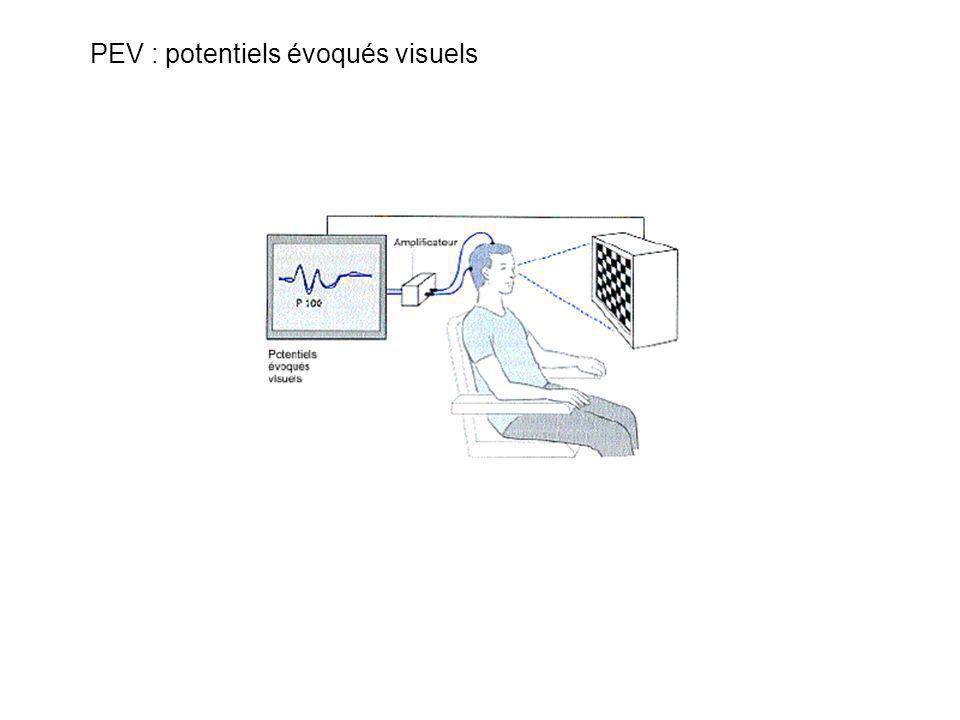 Rétine Accès lexical Compréhension perception mémoire Décision lexicale : 500 ms Catégorisation : 1000 ms Fixation oculaire : 250 ms Effet de la fréqu
