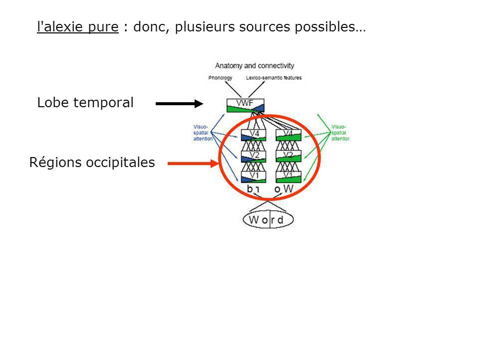 l alexie pure : donc, plusieurs sources possibles… Régions occipitales Lobe temporal