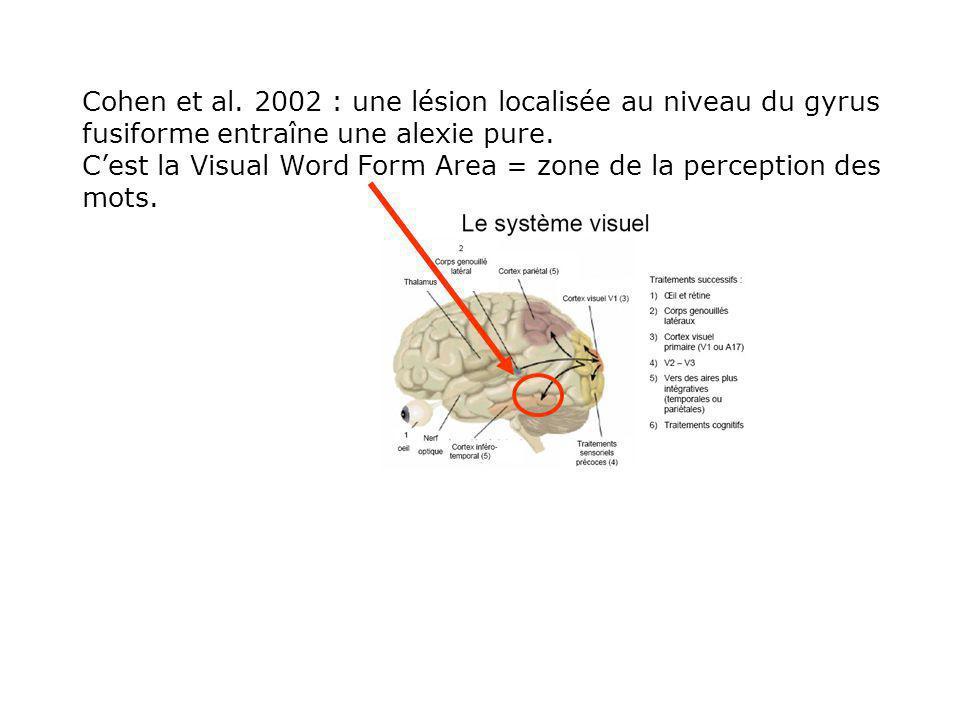 Cohen et al.2002 : une lésion localisée au niveau du gyrus fusiforme entraîne une alexie pure.
