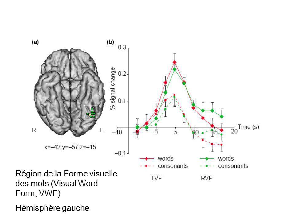 Projections occipitales bilatérales puis projections vers une seule région : la face inférieure du lobe temporal de lhémisphère gauche (gyrus angulaire)