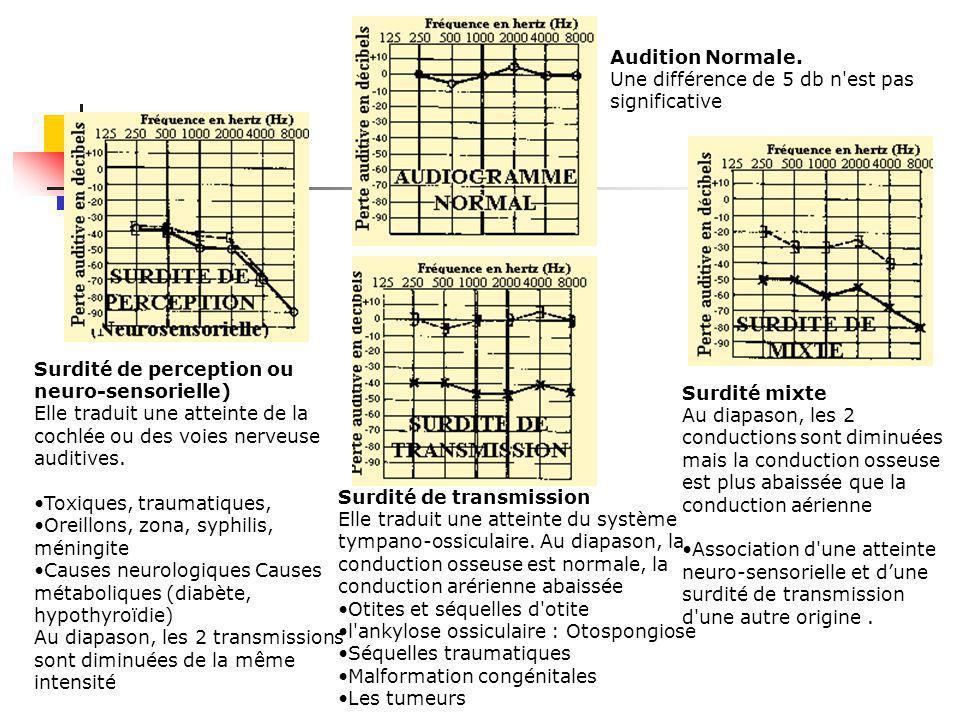 2.3 Exploration fonctionnelle Diagramme de WEGEL -- Transmission des sons par voie aérienne et par voie osseuse -- Paramètres physiques des sons 0 dB