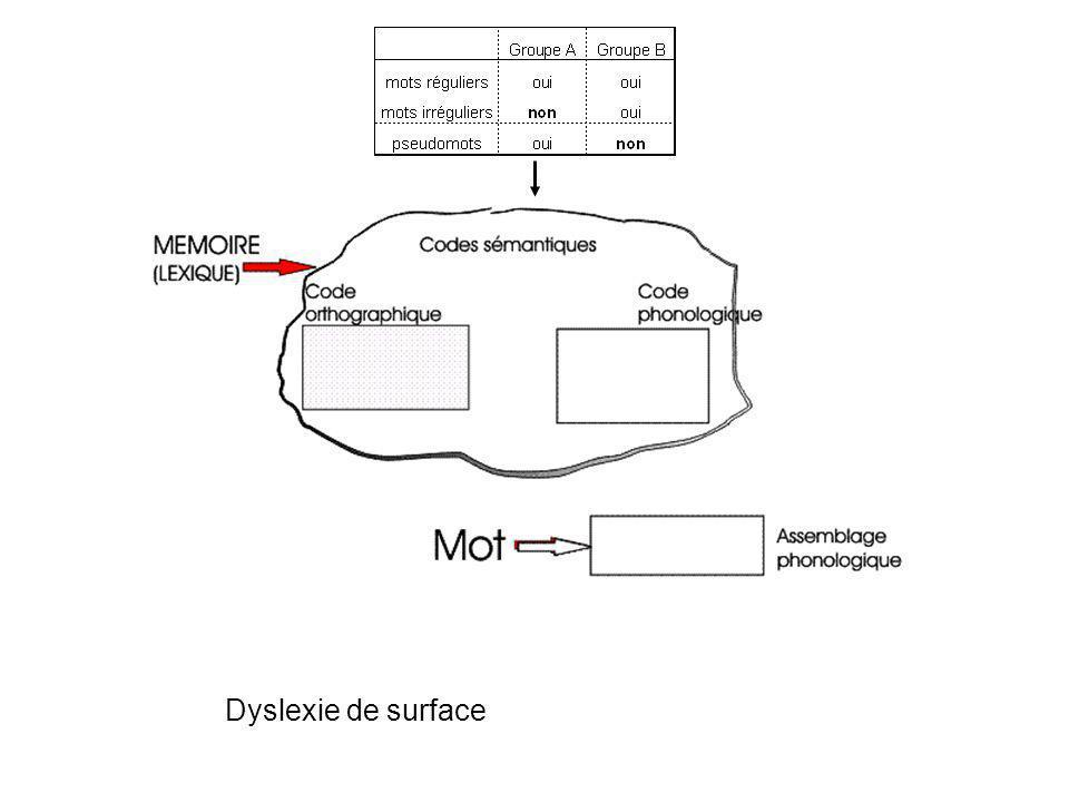 Dyslexie de surface