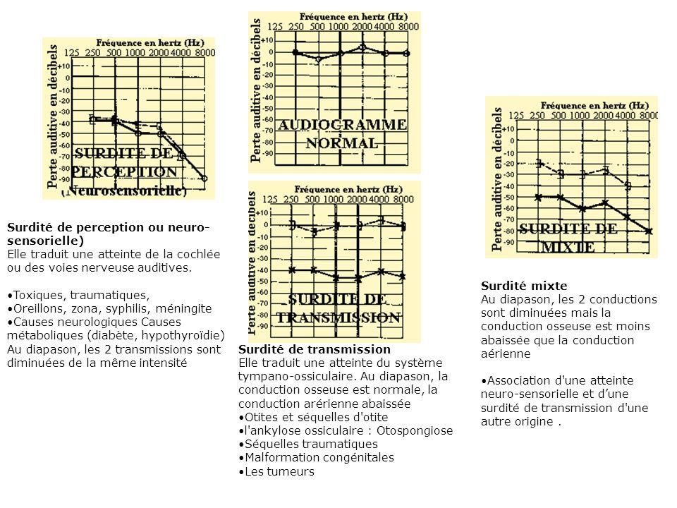 III – DESCRIPTION 3- Exploration fonctionnelle -- Transmission des sons par voie aérienne et par voie osseuse -- Paramètres physiques des sons 0 dB :