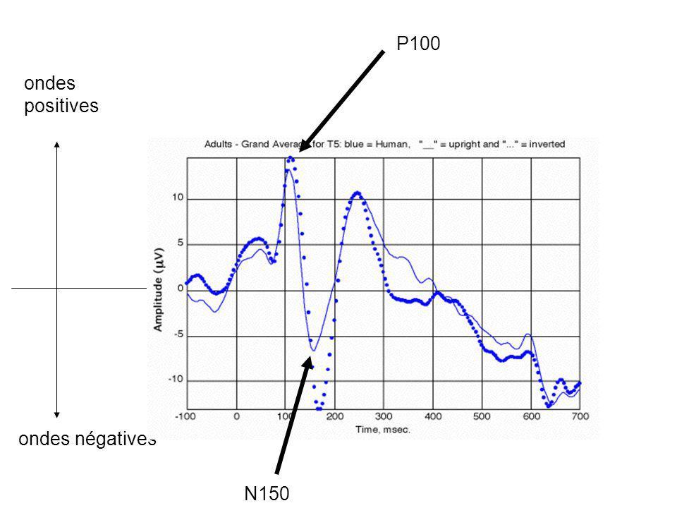 ondes positives ondes négatives N150 P100