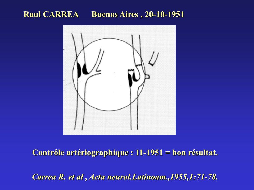 Raul CARREA Buenos Aires, 20-10-1951 Contrôle artériographique : 11-1951 = bon résultat. Carrea R. et al, Acta neurol.Latinoam.,1955,1:71-78.