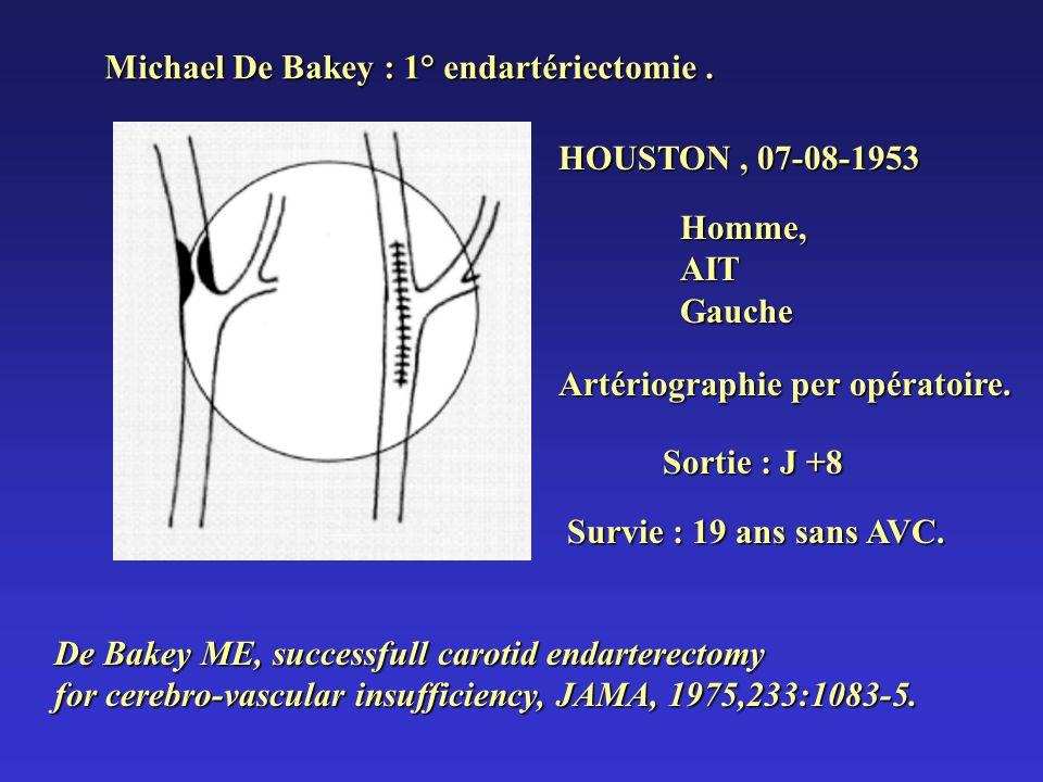 Michael De Bakey : 1° endartériectomie. HOUSTON, 07-08-1953 Homme,AITGauche Artériographie per opératoire. Sortie : J +8 Survie : 19 ans sans AVC. De