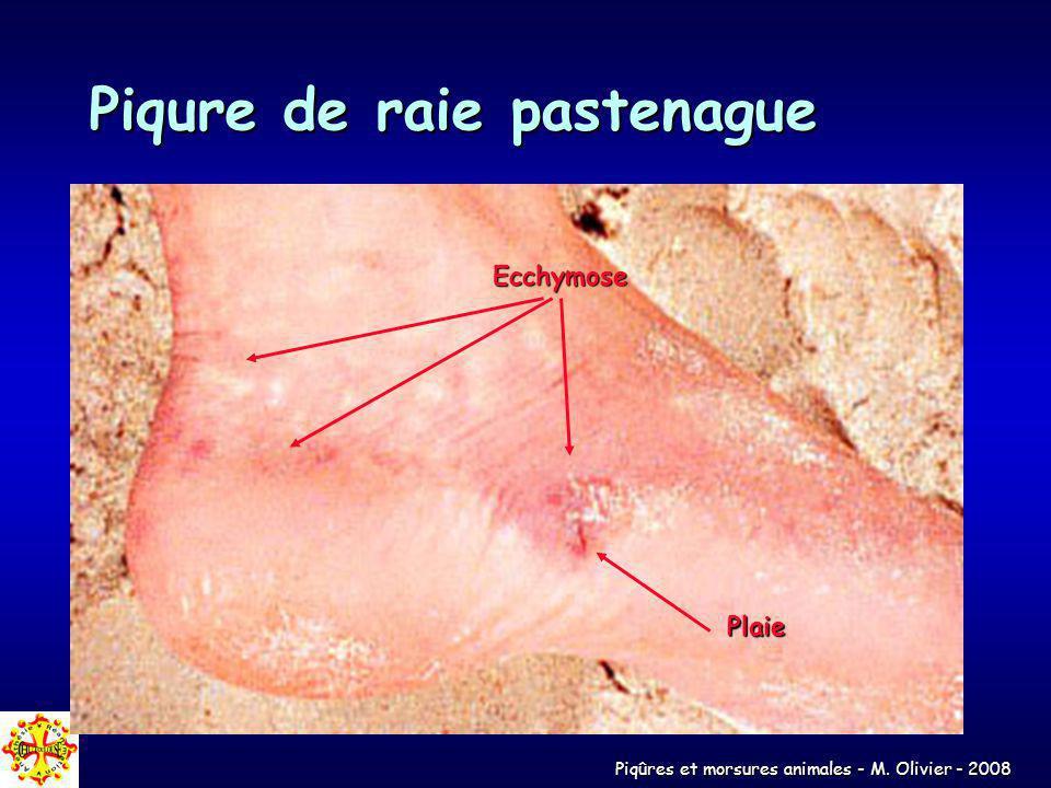 Piqûres et morsures animales - M. Olivier - 2008 Piqure de raie pastenague Plaie Ecchymose