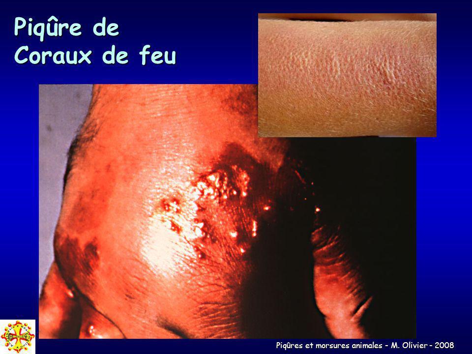 Piqûres et morsures animales - M. Olivier - 2008 Piqûre de Coraux de feu
