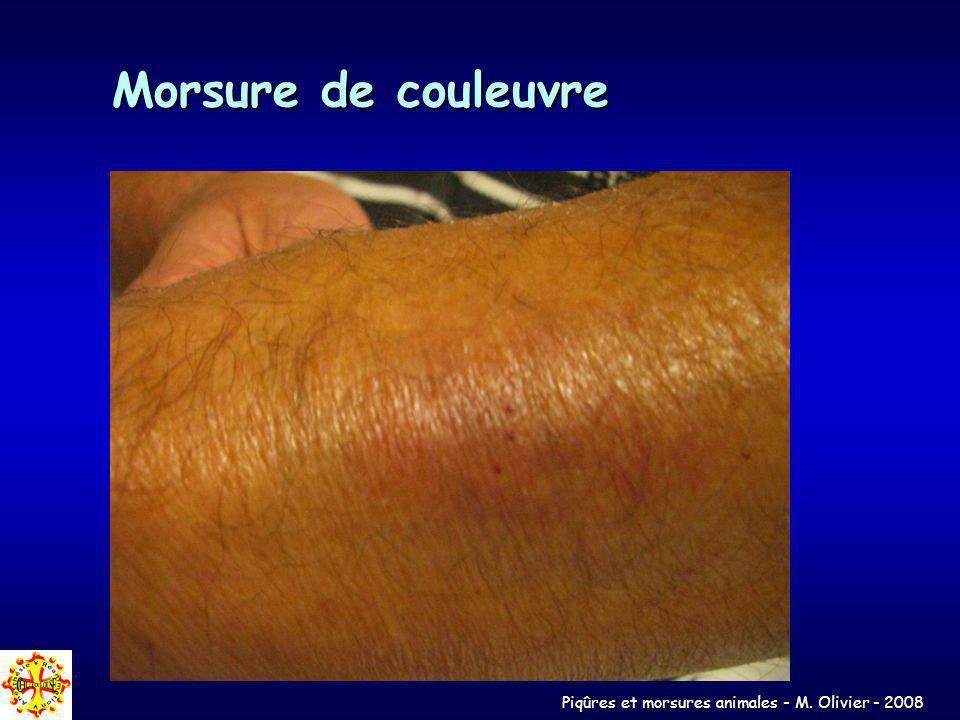 Piqûres et morsures animales - M. Olivier - 2008 Morsure de couleuvre