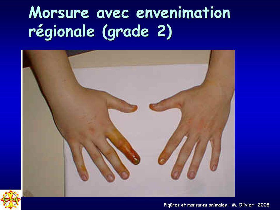 Piqûres et morsures animales - M. Olivier - 2008 Morsure avec envenimation régionale (grade 2)