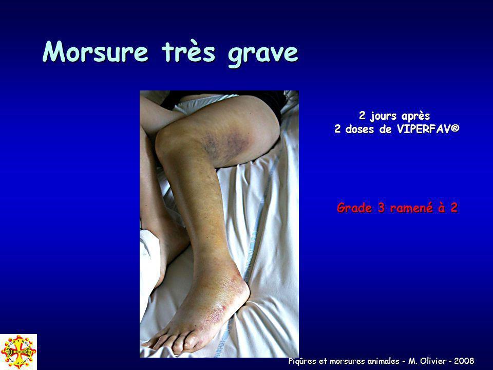 Piqûres et morsures animales - M. Olivier - 2008 Morsure très grave 2 jours après 2 doses de VIPERFAV® Grade 3 ramené à 2