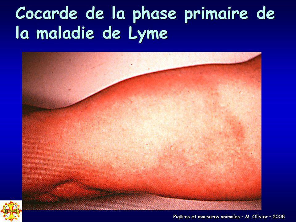 Piqûres et morsures animales - M. Olivier - 2008 Cocarde de la phase primaire de la maladie de Lyme