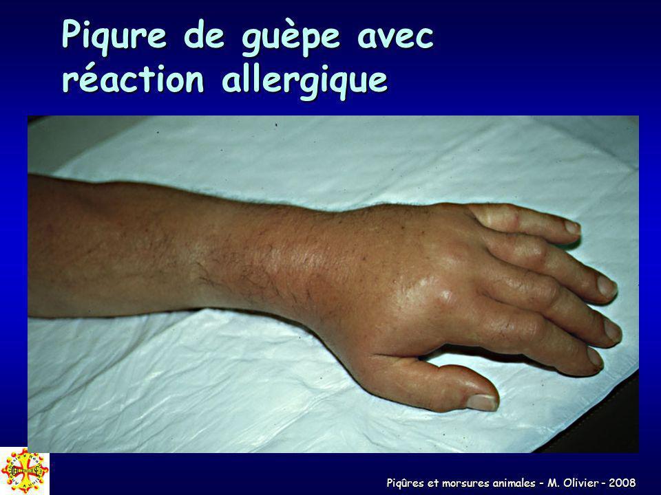 Piqure de guèpe avec réaction allergique
