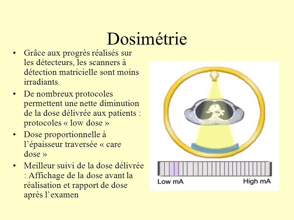 Dosimétrie Grâce aux progrès réalisés sur les détecteurs, les scanners à détection matricielle sont moins irradiants. De nombreux protocoles permetten