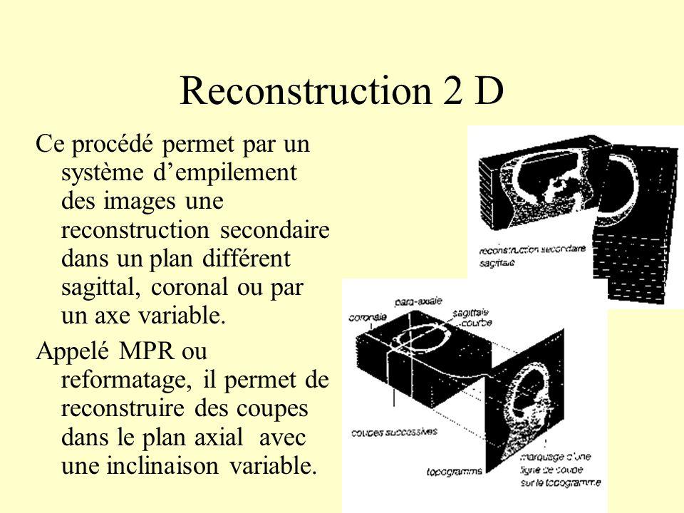 Reconstruction 2 D Ce procédé permet par un système dempilement des images une reconstruction secondaire dans un plan différent sagittal, coronal ou p