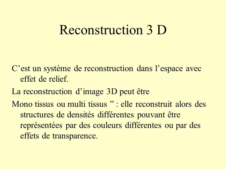 Reconstruction 3 D Cest un système de reconstruction dans lespace avec effet de relief. La reconstruction dimage 3D peut être Mono tissus ou multi tis