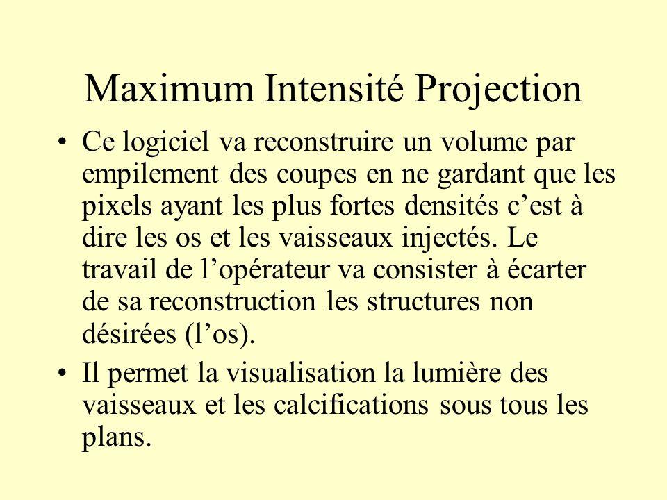 Maximum Intensité Projection Ce logiciel va reconstruire un volume par empilement des coupes en ne gardant que les pixels ayant les plus fortes densit