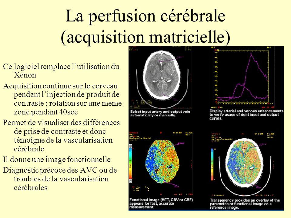 La perfusion cérébrale (acquisition matricielle) Ce logiciel remplace lutilisation du Xénon Acquisition continue sur le cerveau pendant linjection de