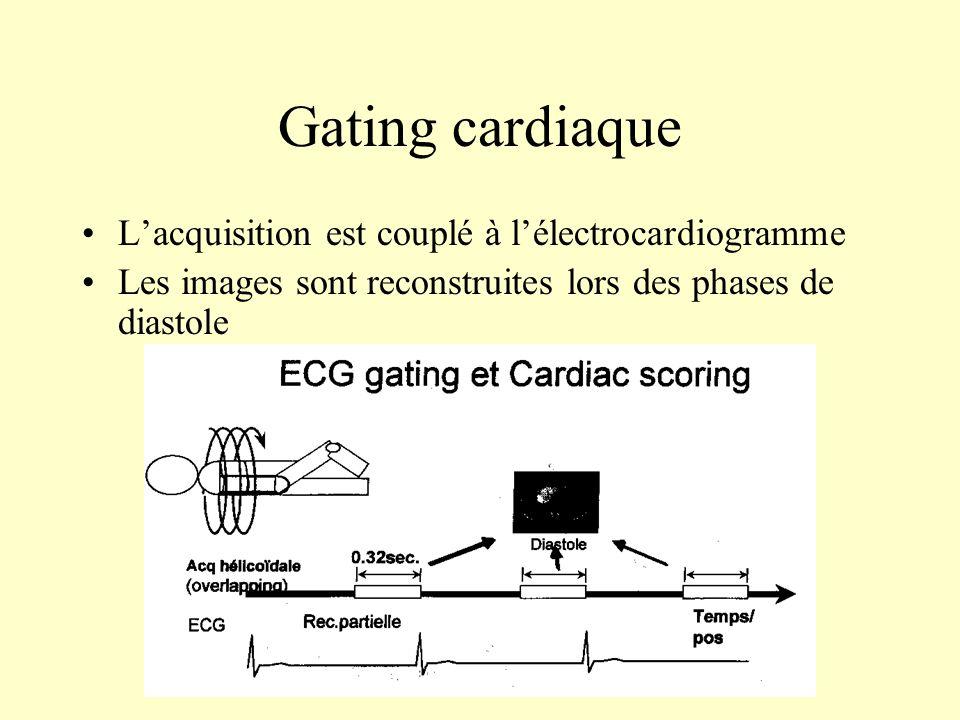 Gating cardiaque Lacquisition est couplé à lélectrocardiogramme Les images sont reconstruites lors des phases de diastole