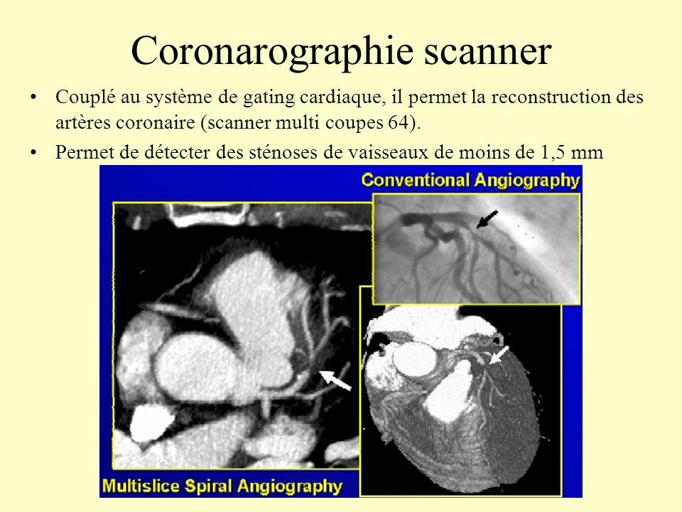 Coronarographie scanner Couplé au système de gating cardiaque, il permet la reconstruction des artères coronaire (scanner multi coupes 64). Permet de